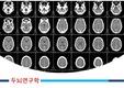 #20181114C, 원인, 의대, CT, MRI, 생각, 뇌호흡, 중추, 신경, 뇌, PPT, 템플릿, 건강, 해부, 뇌졸증, 의학, 연구, 병, 질병,